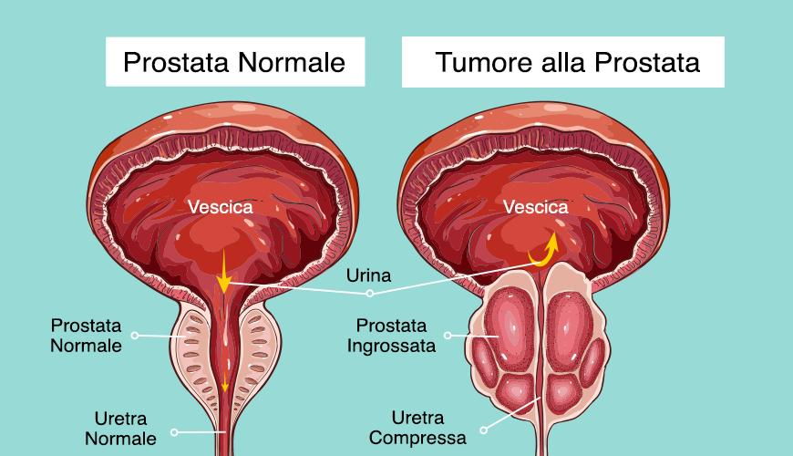 Prostata: la paura nell'uomo, la cura e la prevenzione